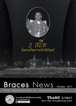 Braces-News-Cover-Nov-2017