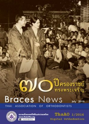 Braces-News-July-2016-Cover-For-Web