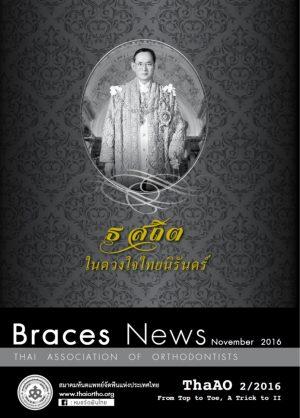 BracesNewsCoverNov2016